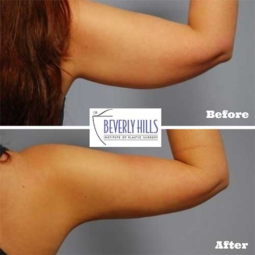 beverly-hills-md-lift-and-firm